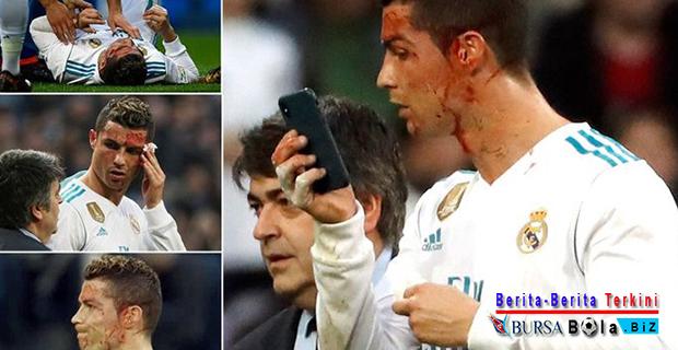 Real Madrid Pesta Gol Melawan Coruna, Ronaldo Malah Berdarah-Darah